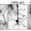 Нарушение сигнального пути мозга может быть причиной болезни Альцгеймера