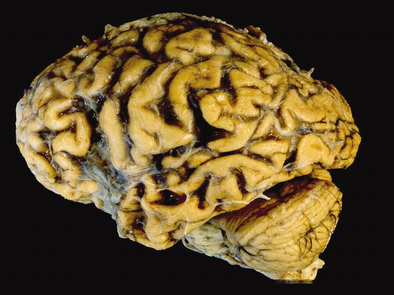 Атрофические заболевания головного мозга
