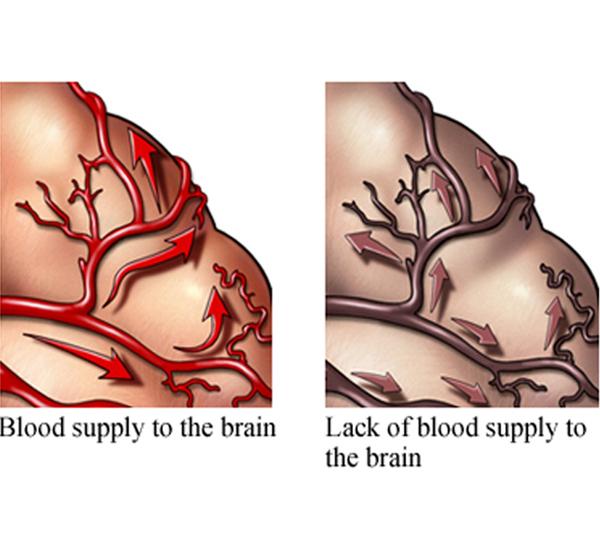 Сосудистая деменция | Сосудистые заболевания головного мозга |