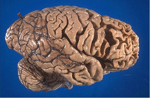 picks disease Pick's disease is characterized by deterioration of the frontotemporal lobe the term pick's disease is used to describe a specific condition where tau proteins (pick bodies) collect in the brain.