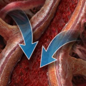 Нарушения электролитного и водного метаболизма