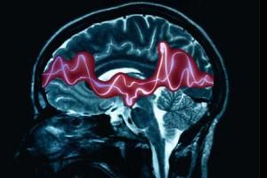 Болезнь эпилепсия