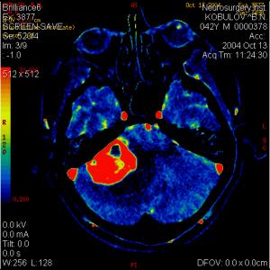 Нейрорентгенологическое обследование и фармакологические методы