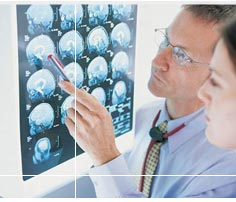 Психические расстройства при черепно-мозговой травме