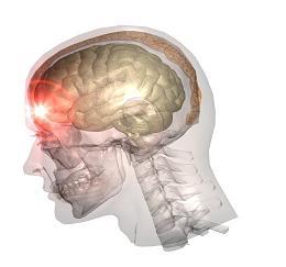 Шизофрения после черепно мозговых травм