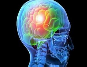 Причины развития приступа эпилепсии
