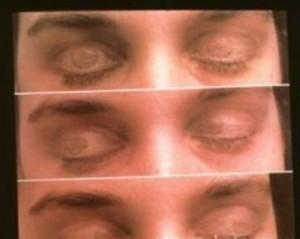 Офтальмологический тест определяет больных шизофренией