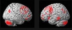 Как влияет шизофрения на память