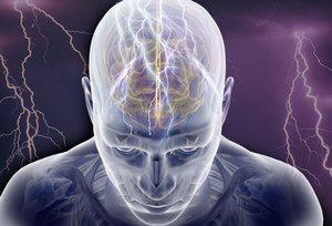 Идиопатическая эпилепсия: причины, особенности течения, диагностика