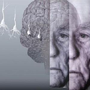 Проблемы старческого слабоумия. Лечение деменции в Израиле