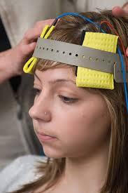 Электростимуляция головного мозга понижает интеллект