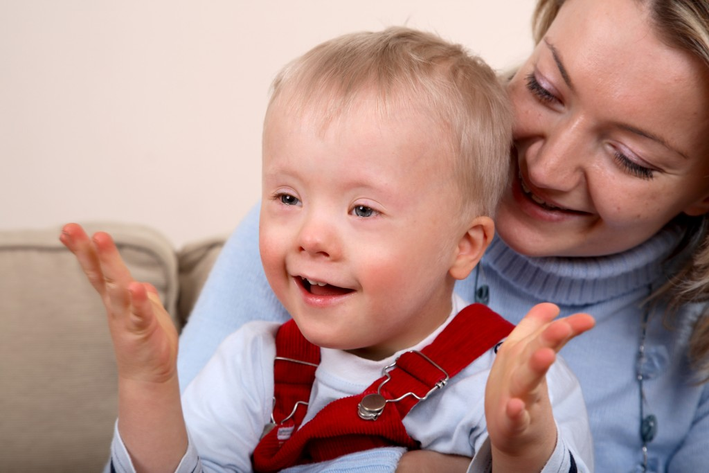 Оренбургскую Государственную как выглядить тяжелая умственная отсталость у детей область