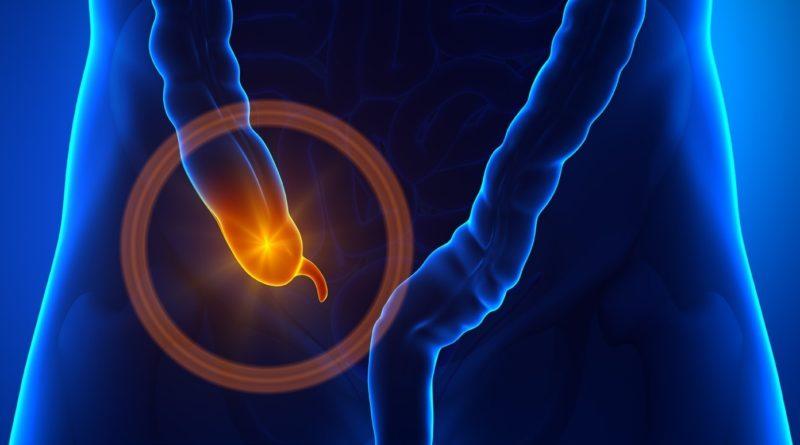 С какой стороны аппендицит: месторасположение аппендикса, основные симптомы